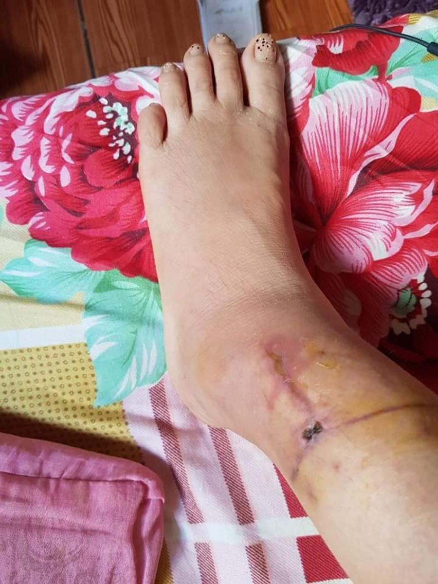 Thông tin mới nhất vụ chồng dùng dao rạch mặt, cắt gân chân vợ hờ ở Bắc Giang-2