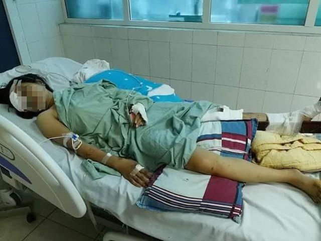 Vụ tai nạn giao thông khiến 13 người tử vong tại Lai Châu: Thoát cửa tử nhưng đối mặt với tận cùng nỗi đau-1