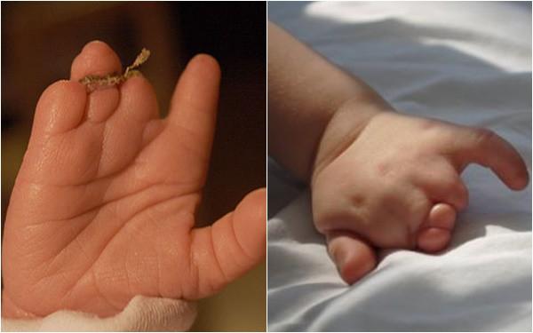 Mẹ lặng người khi sinh con ra không có bàn tay, bác sĩ mổ tìm thấy 1 bàn tay bé xíu còn nằm trong tử cung-5
