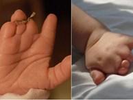 Mẹ lặng người khi sinh con ra không có bàn tay, bác sĩ mổ tìm thấy 1 bàn tay bé xíu còn nằm trong tử cung