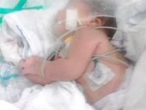 10 phút sau khi tắm, con gái 3 ngày tuổi đột nhiên co giật sùi bọt mép, mẹ đưa con vào bệnh viện thì phát hiện nguyên nhân rùng rợn