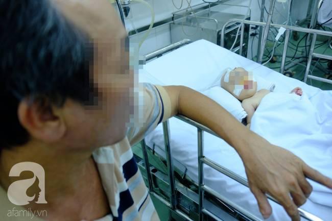 Phụ huynh rối bời vì trẻ bị tay chân miệng ở TP.HCM tăng gấp 5 lần-5
