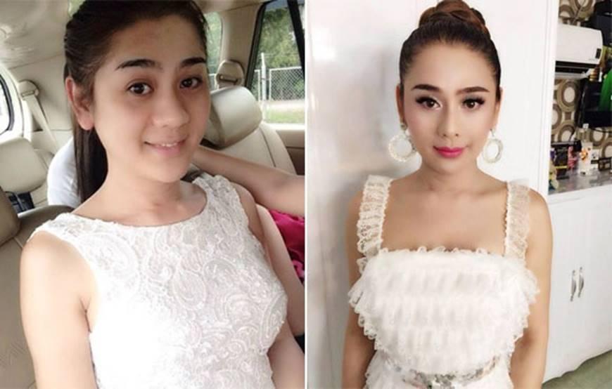 Sau khi dao kéo sao Việt nhìn ra sao nếu không photoshop, make up?-1