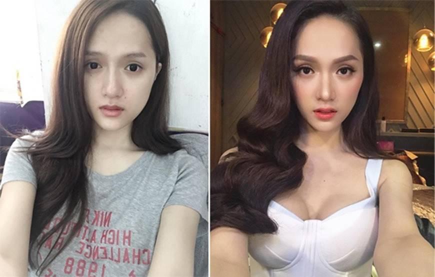 Sau khi dao kéo sao Việt nhìn ra sao nếu không photoshop, make up?-23