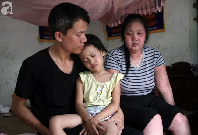Người mẹ trẻ ung thư giai đoạn cuối ở Hà Nam: Đã rất lâu rồi gia đình em mới có tiền mua sữa cho 3 cô con gái-2