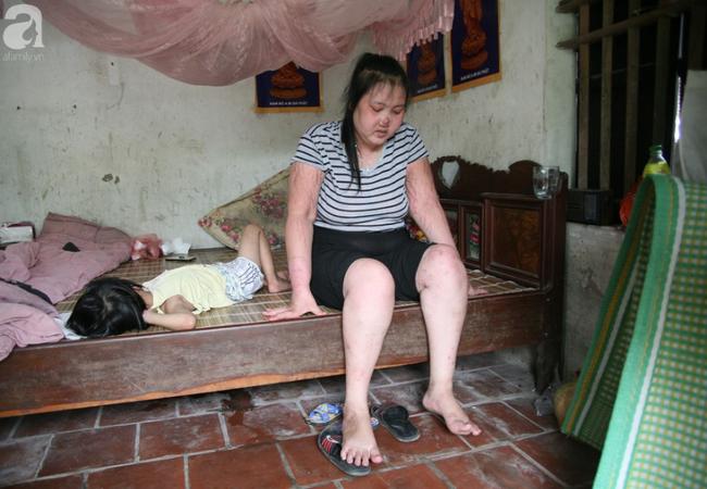 Người mẹ trẻ ung thư giai đoạn cuối ở Hà Nam: Đã rất lâu rồi gia đình em mới có tiền mua sữa cho 3 cô con gái-5