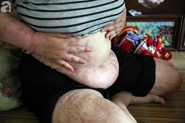Người mẹ trẻ ung thư giai đoạn cuối ở Hà Nam: Đã rất lâu rồi gia đình em mới có tiền mua sữa cho 3 cô con gái-7