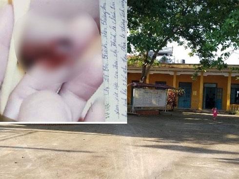 Thực hư thông tin cô giáo mầm non vụt chảy máu bộ phận sinh dục bé trai 3 tuổi-1