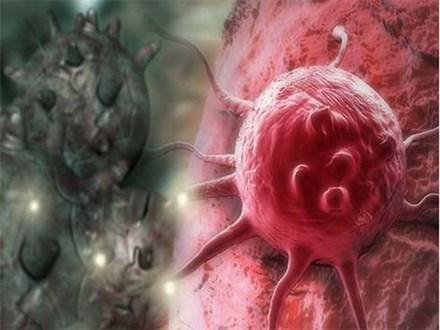 Hiệp hội Ung thư Mỹ chỉ cách phát hiện sớm 6 loại ung thư, trước khi có các dấu hiệu bệnh
