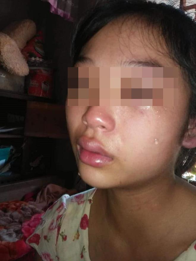 Vợ 16 tuổi lên mạng cầu cứu vì bị chồng siết cổ, đánh đuổi ra khỏi nhà-3