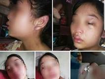 Vợ 16 tuổi lên mạng cầu cứu vì bị chồng siết cổ, đánh đuổi ra khỏi nhà