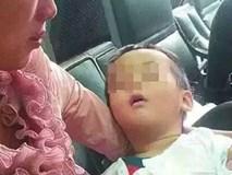 Một bé tổn thương não, 2 bé tử vong vì hành động trêu chọc sai lầm của người lớn