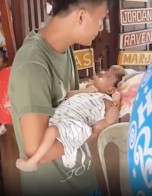 Mẹ bầu tự uống thuốc khi sốt và lười siêu âm, sốc nặng khi nhìn mặt con lúc chào đời-2