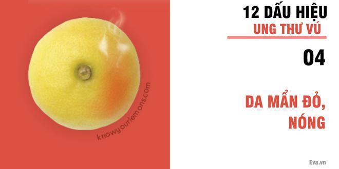 Nhờ vào bức ảnh 12 quả chanh, người phụ nữ bất ngờ phát hiện bị ung thư vú-5