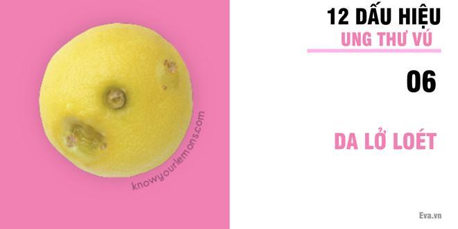 Nhờ vào bức ảnh 12 quả chanh, người phụ nữ bất ngờ phát hiện bị ung thư vú-7