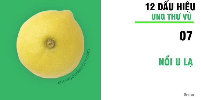 Nhờ vào bức ảnh 12 quả chanh, người phụ nữ bất ngờ phát hiện bị ung thư vú-8