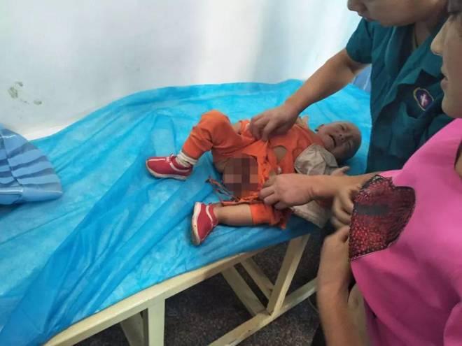 Bé trai 2 tuổi bị kẹt dương vật ở thang cuốn, ai nhìn hình ảnh cũng xót-4