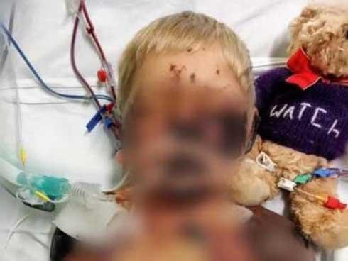 Cậu bé 4 tuổi tưởng bị cảm cúm, không ngờ mắc bệnh nguy hiểm, chết sau 13 ngày nằm viện-2