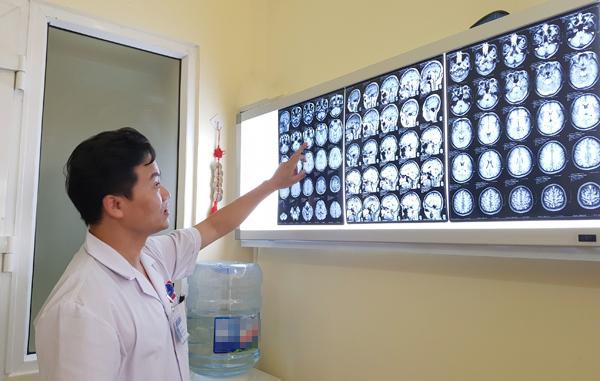 Người đàn ông suýt chết vì đột quỵ, bất ngờ phát hiện mắc u não-1