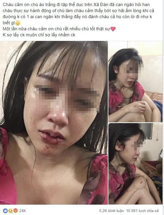 Cô gái xinh đẹp, bức ảnh môi bầm dập và dòng tâm sự cay đắng thu hút 11.000 lượt chia sẻ-1