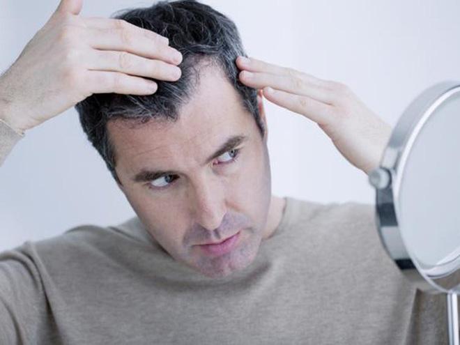 3 cột mốc quan trọng nhất nam giới cần bồi bổ: Gợi ý cách ăn uống hiệu quả bạn nên làm-2