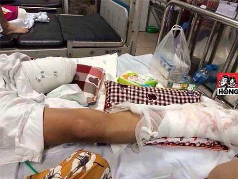 Phú Thọ: Sau khi nhận tin nhắn Đừng hỏi tao là ai qua Facebook, nạn nhân đi ra đường bị chém nát chân-1
