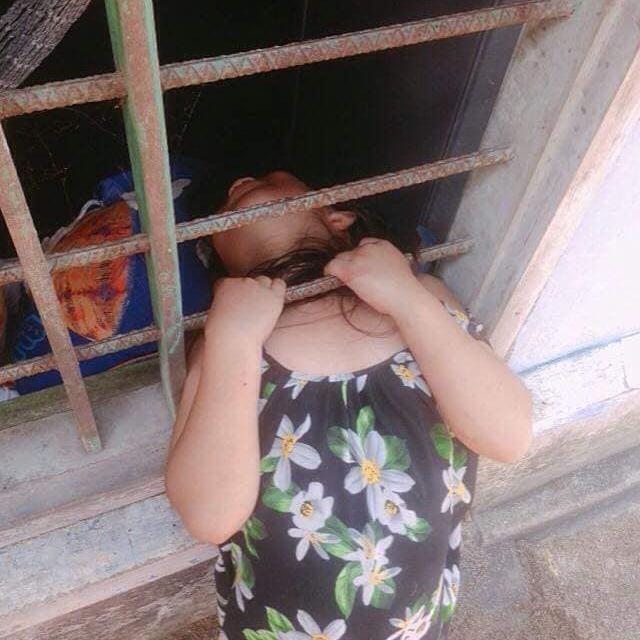 Bé gái nghịch dại kẹt đầu vào song sắt cửa sổ, phụ huynh phải dùng cưa máy để giải cứu-1