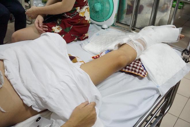 Thanh niên bị truy sát phải cưa chân: Bọn chúng thay nhau lôi chân, tay tôi ra chém-2