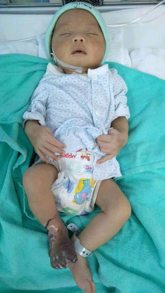 Lấy máu xét nghiệm nhiễm trùng máu, chân bé sơ sinh bị sưng phù, tím đen-2