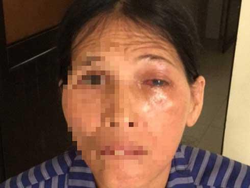 Suýt hỏng mắt vì đắp lá chữa đau mắt-1
