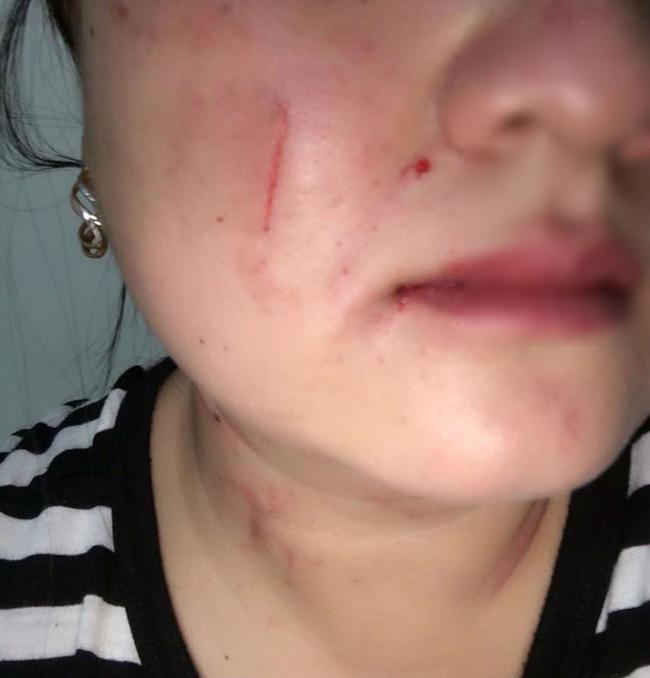 Vợ trẻ tố chồng đánh mình giữa đêm và cách cô phản ứng dữ dội, hội chị em ngồi hóng chỉ chú ý đến chi tiết này-2