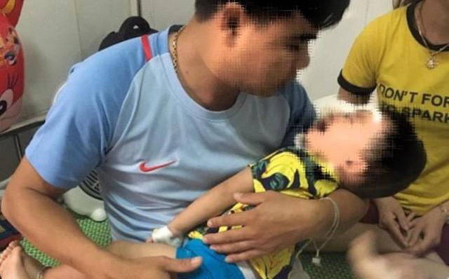 Bé trai 2 tuổi bị chó becgie nhà nuôi cắn đa chấn thương ở mặt-1