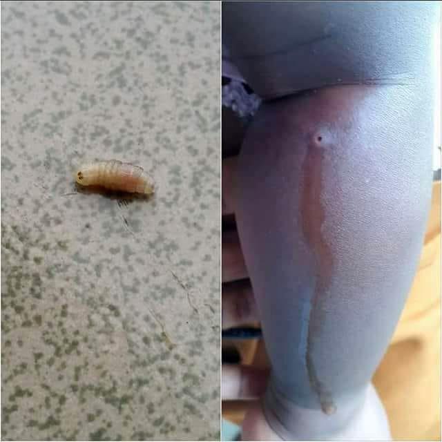 Nặn mủ từ vết sưng trên chân con, mẹ hoảng hồn phát hiện 4 con giòi sống chui ra-1