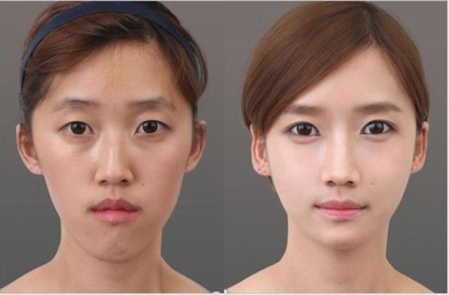 Nỗi ám ảnh ngoại hình của phụ nữ Hàn Quốc: Không phẫu thuật thẩm mỹ sẽ... thất nghiệp-4