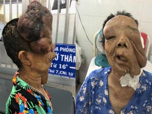 Người phụ nữ 10 năm không dám ra đường vì mang khuôn mặt kỳ dị-1