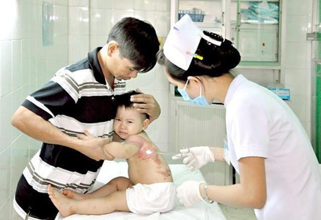 Cậu bé bị bỏng nước sôi 100 độ, hành động sơ cứu của người mẹ ai cũng nên học hỏi-5