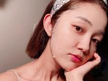 """3 dấu hiệu cho thấy da mặt đang thiếu độ ẩm trầm trọng và những lưu ý để """"cấp cứu"""" cho làn da"""