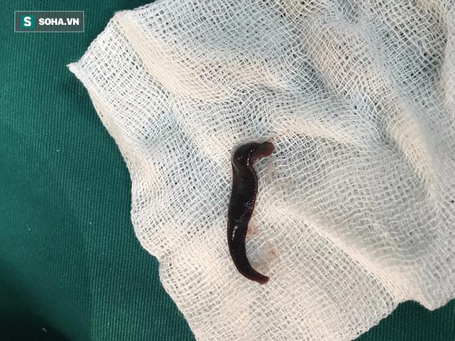 Sinh vật dài 5cm ngoe nguẩy trong mũi, khiến bệnh nhân đau đầu, sổ mũi kéo dài-2