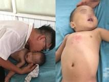 Mẹ bận bán rau trước nhà, con trai 19 tháng tuổi chúi đầu vào thùng nước ngưng tim