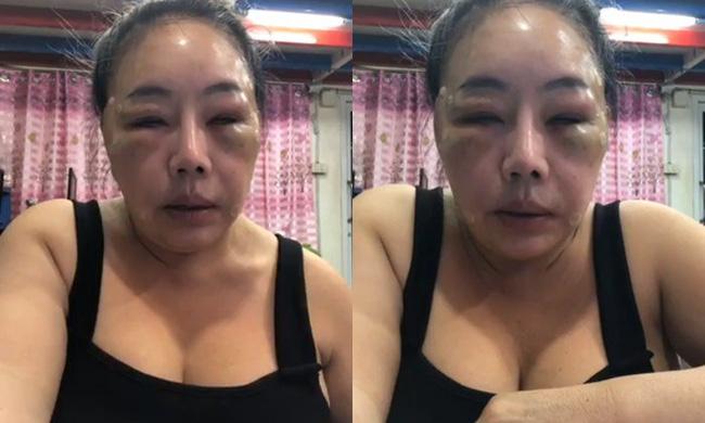 Nữ đại gia Thái Lan đổi chồng như thay áo năm nào gây sốc với gương mặt sưng vù vì bị chồng mới đánh đập?-1