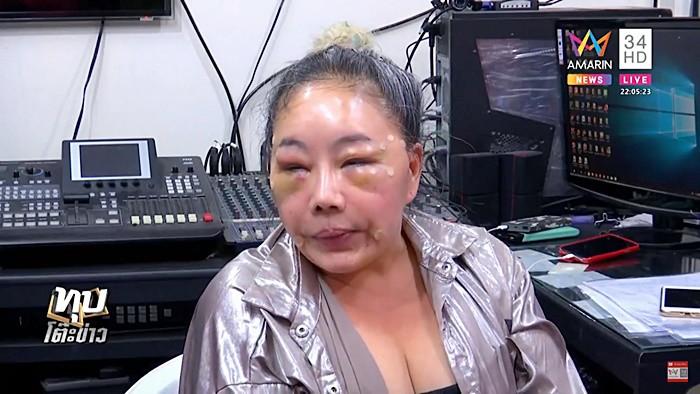 Nữ đại gia Thái Lan đổi chồng như thay áo năm nào gây sốc với gương mặt sưng vù vì bị chồng mới đánh đập?-2