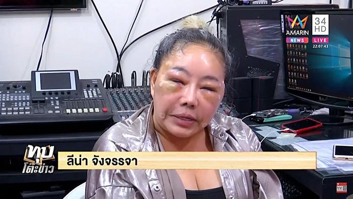 Nữ đại gia Thái Lan đổi chồng như thay áo năm nào gây sốc với gương mặt sưng vù vì bị chồng mới đánh đập?-3