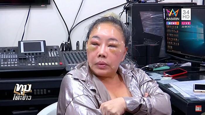 Nữ đại gia Thái Lan đổi chồng như thay áo năm nào gây sốc với gương mặt sưng vù vì bị chồng mới đánh đập?-4