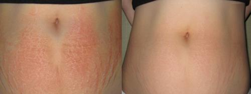 Rạn da đến mấy cũng mờ đi với công thức thần kỳ từ viên Vitamin E và nha đam-7