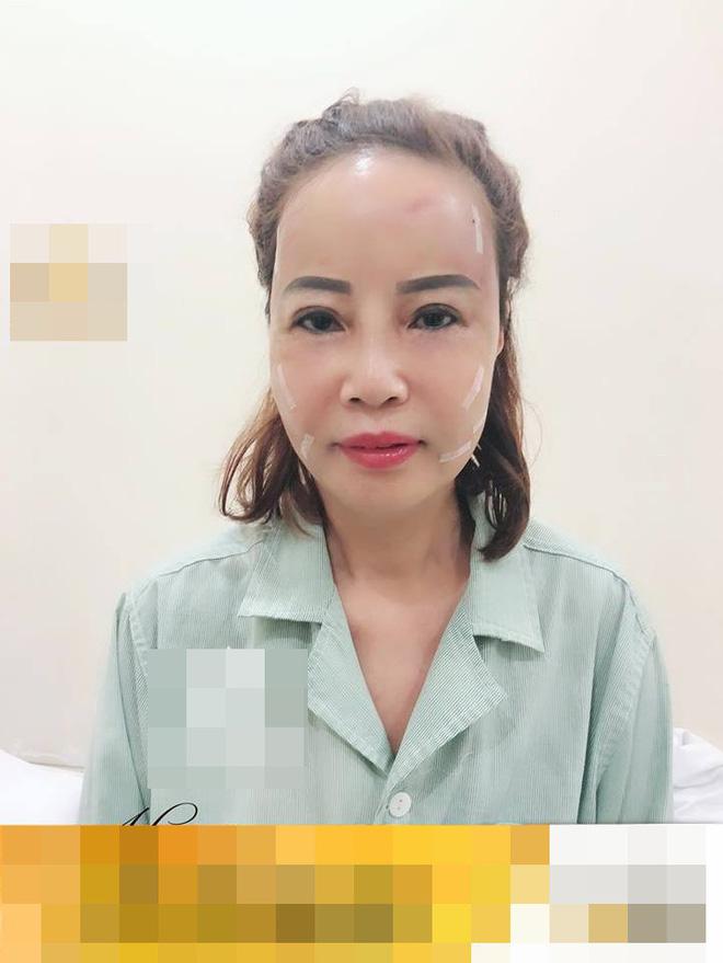 Cô dâu 62 tuổi tiến hành phẫu thuật thẩm mỹ, nhan sắc mới trẻ trung như ở tuổi 40-1