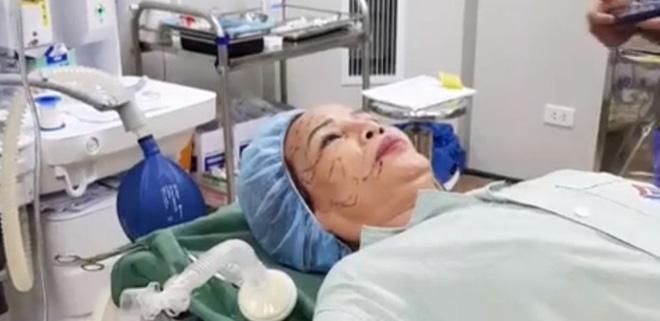 Cô dâu 62 tuổi tiến hành phẫu thuật thẩm mỹ, nhan sắc mới trẻ trung như ở tuổi 40-3
