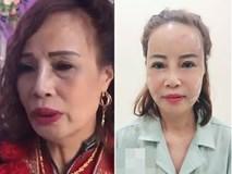 Cô dâu 62 tuổi tiến hành phẫu thuật thẩm mỹ, nhan sắc mới trẻ trung như ở tuổi 40