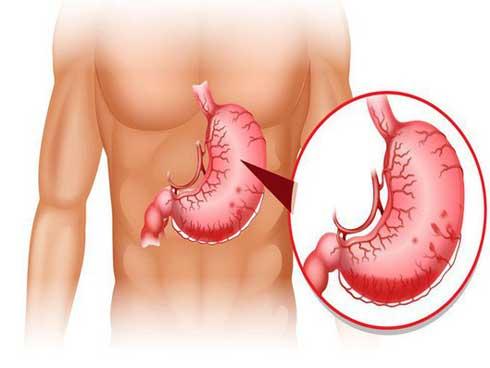 Viêm dạ dày lâu ngày có thể dẫn tới ung thư: Phát hiện và chữa kịp thời nhờ 8 dấu hiệu-1