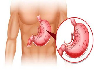 Viêm dạ dày lâu ngày có thể dẫn tới ung thư: Phát hiện và chữa kịp thời nhờ 8 dấu hiệu