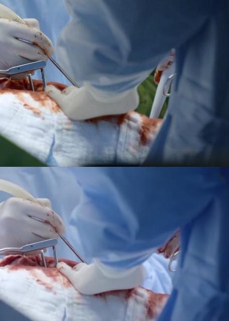 Hài hước cảnh dùng thịt bò để phẫu thuật trong Hậu duệ mặt trời Việt-6